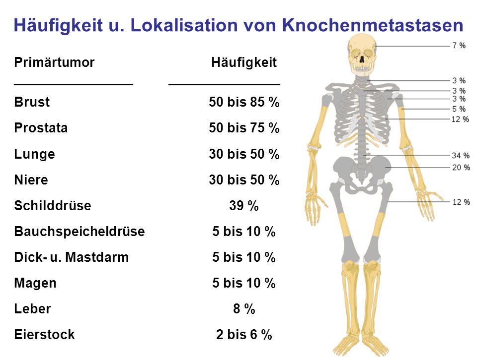 Häufigkeit u. Lokalisation von Knochenmetastasen