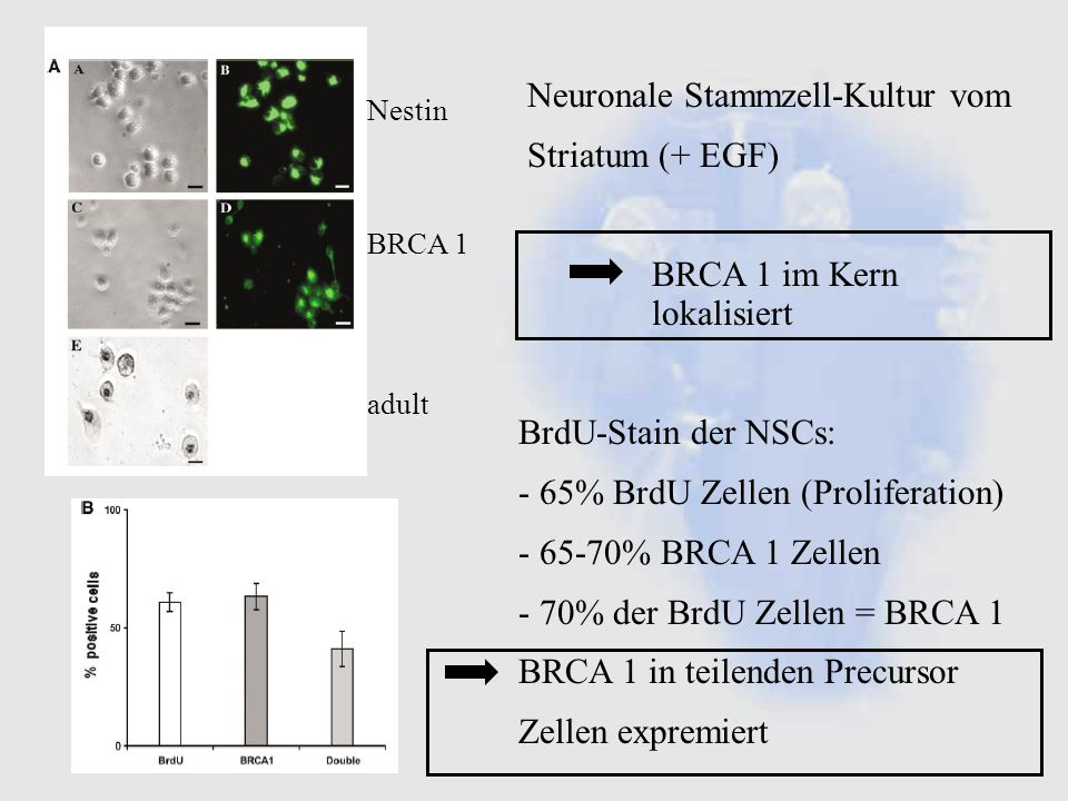 Neuronale Stammzell-Kultur vom Striatum (+ EGF)
