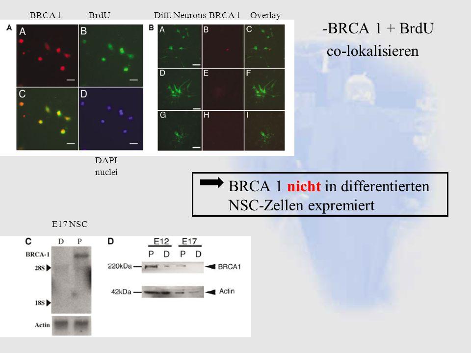 BRCA 1 nicht in differentierten NSC-Zellen expremiert
