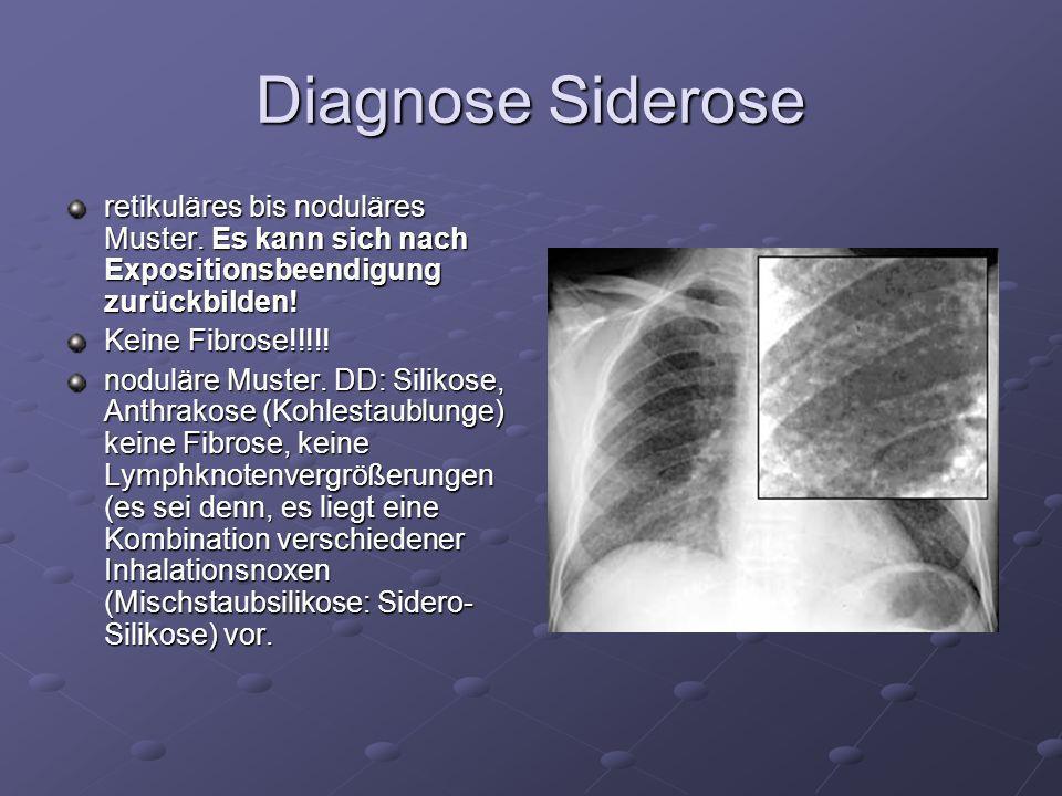 Diagnose Siderose retikuläres bis noduläres Muster. Es kann sich nach Expositionsbeendigung zurückbilden!
