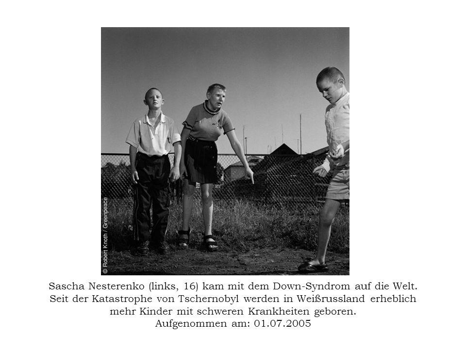 Sascha Nesterenko (links, 16) kam mit dem Down-Syndrom auf die Welt