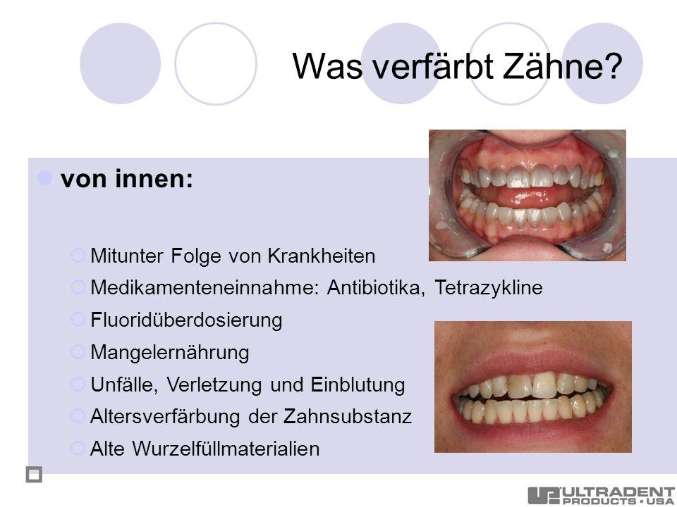 Was verfärbt Zähne von innen:  Mitunter Folge von Krankheiten