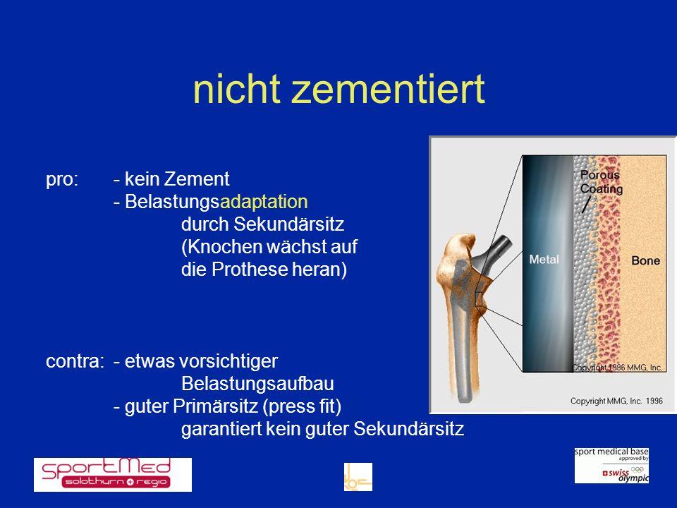 nicht zementiert pro: - kein Zement - Belastungsadaptation