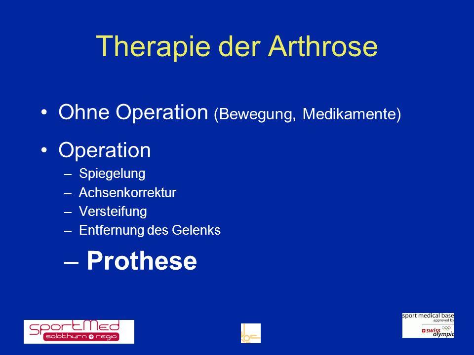 Therapie der Arthrose Prothese Ohne Operation (Bewegung, Medikamente)