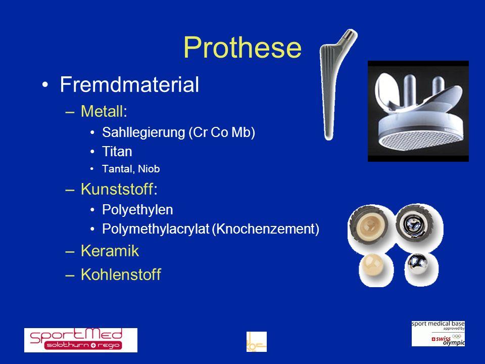 Prothese Fremdmaterial Metall: Kunststoff: Keramik Kohlenstoff