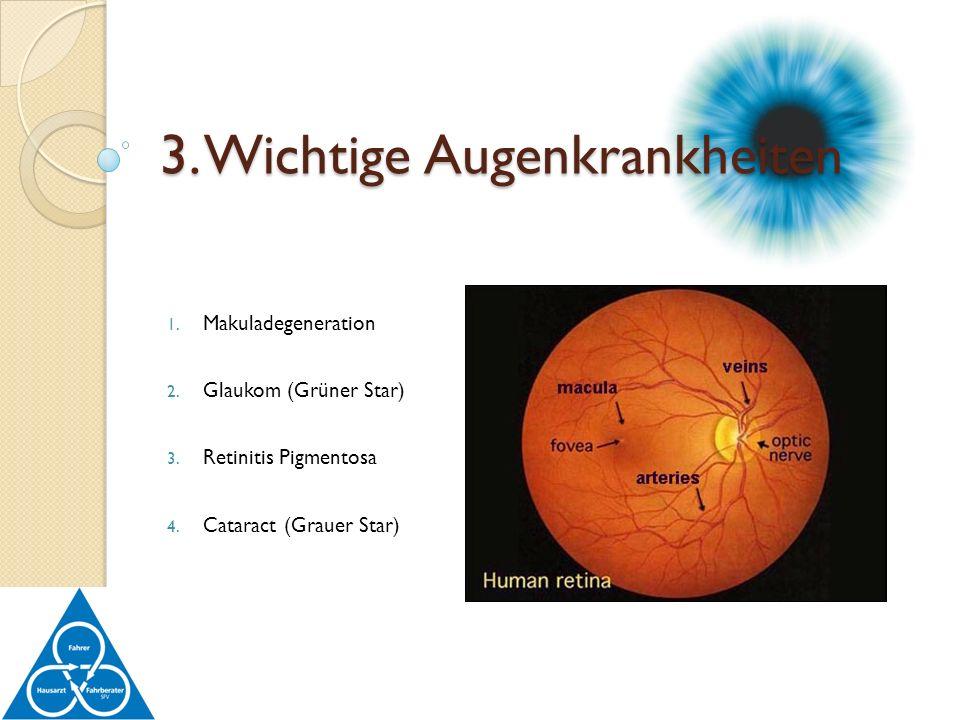 3. Wichtige Augenkrankheiten