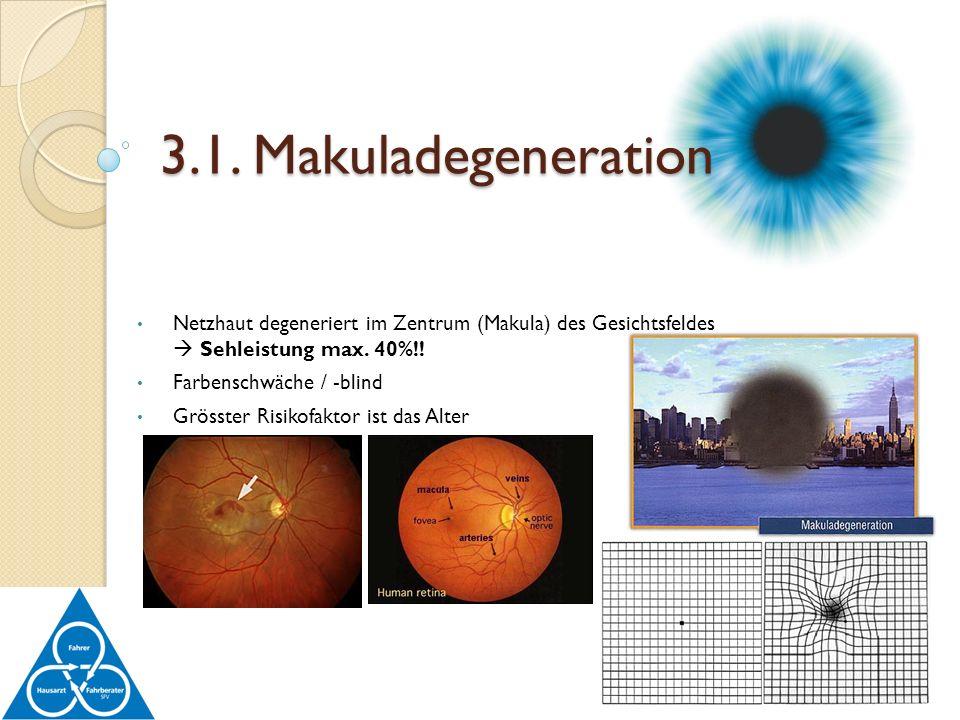 3.1. Makuladegeneration Netzhaut degeneriert im Zentrum (Makula) des Gesichtsfeldes  Sehleistung max. 40%!!