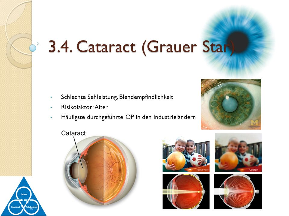 3.4. Cataract (Grauer Star)