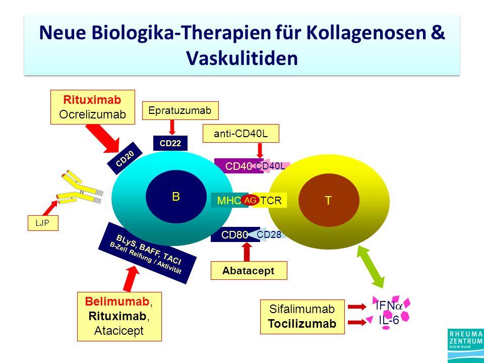 Neue Biologika-Therapien für Kollagenosen & Vaskulitiden