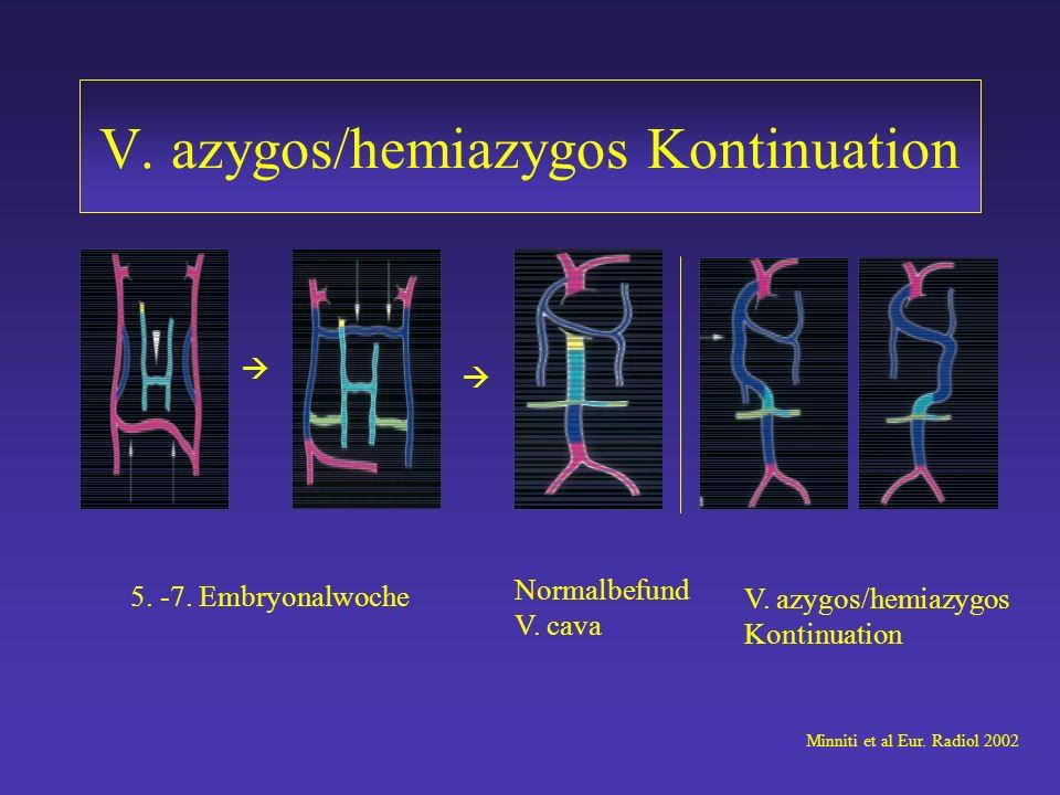 V. azygos/hemiazygos Kontinuation