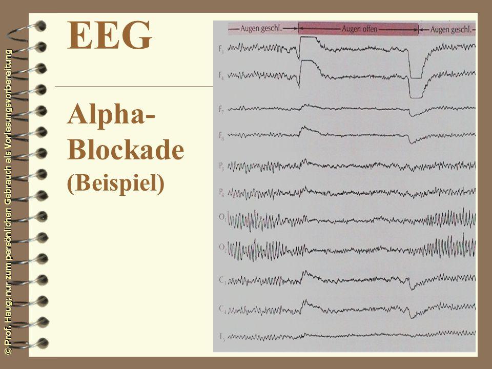 EEG Alpha- Blockade (Beispiel)