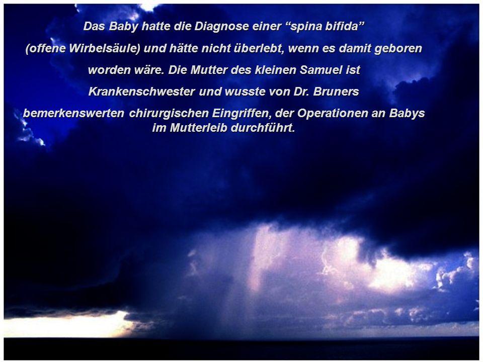 Das Baby hatte die Diagnose einer spina bifida