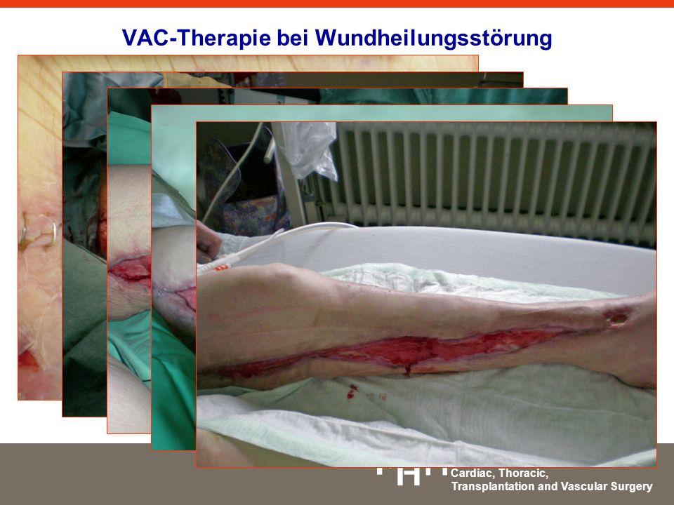 VAC-Therapie bei Wundheilungsstörung