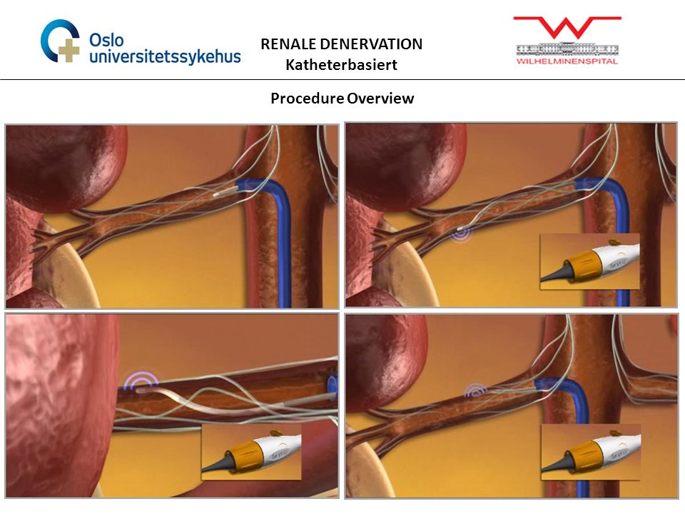 RENALE DENERVATION Katheterbasiert Procedure Overview