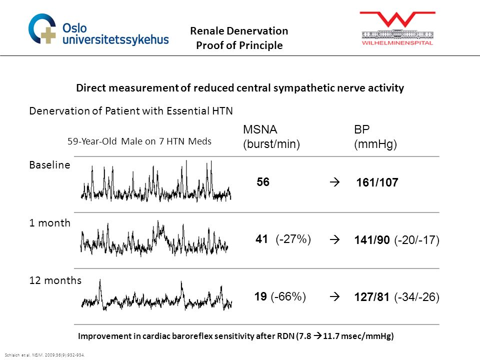 Direct measurement of reduced central sympathetic nerve activity