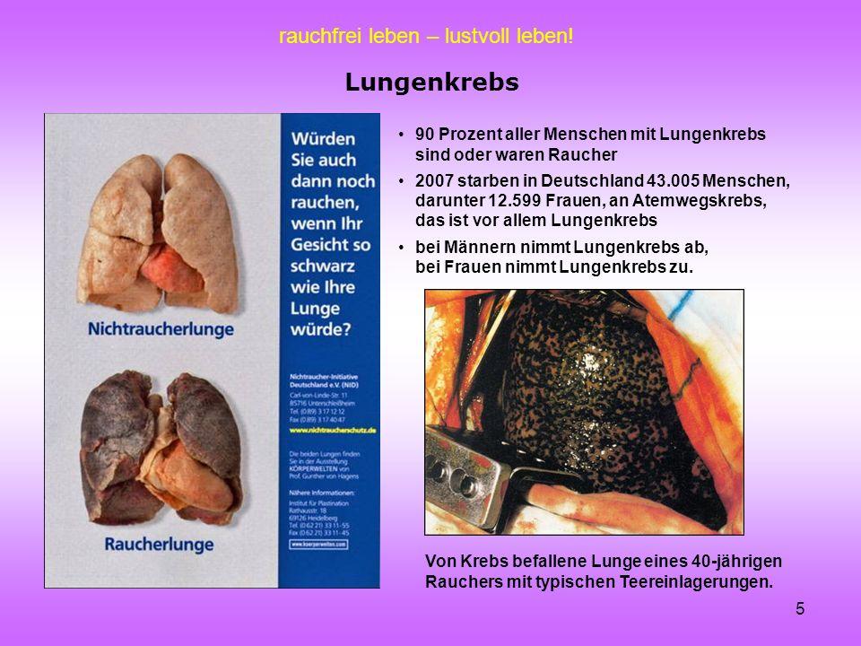 Lungenkrebs 90 Prozent aller Menschen mit Lungenkrebs sind oder waren Raucher.