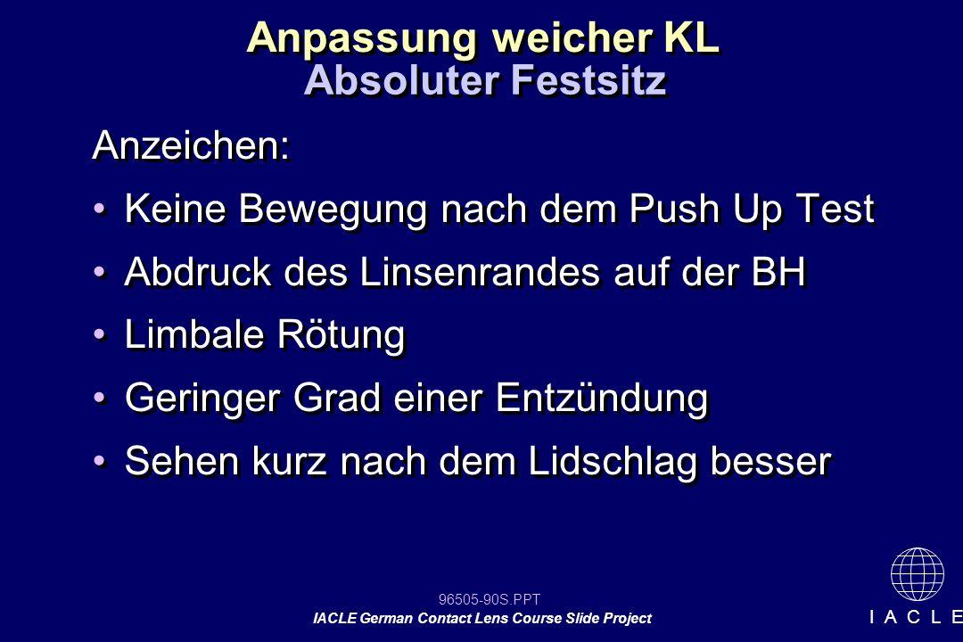 Anpassung weicher KL Absoluter Festsitz Anzeichen: