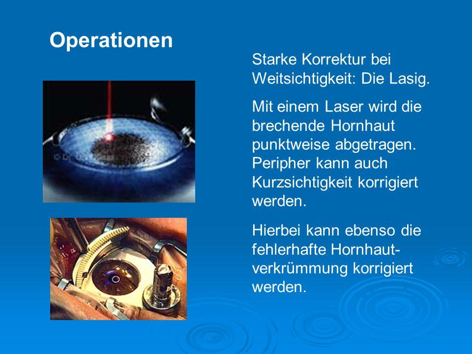 Operationen Starke Korrektur bei Weitsichtigkeit: Die Lasig.