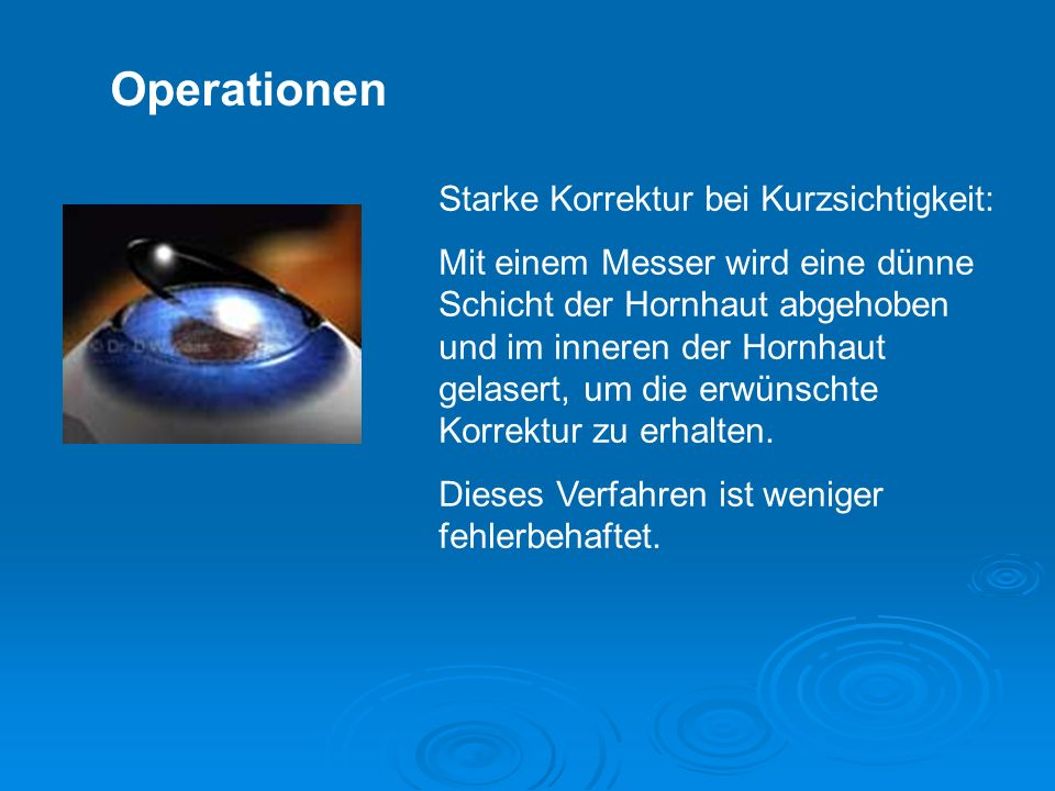 Operationen Starke Korrektur bei Kurzsichtigkeit: