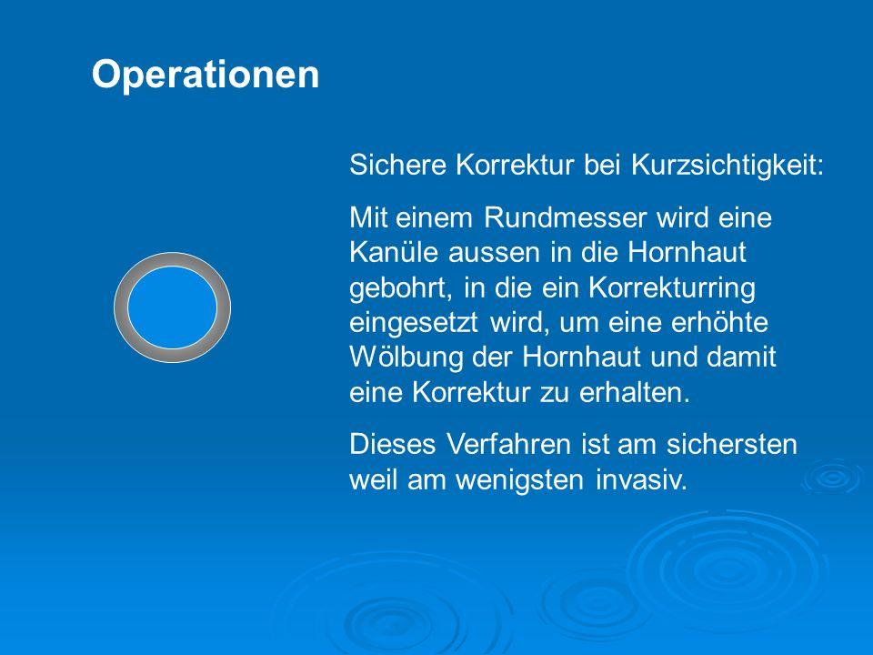 Operationen Sichere Korrektur bei Kurzsichtigkeit: