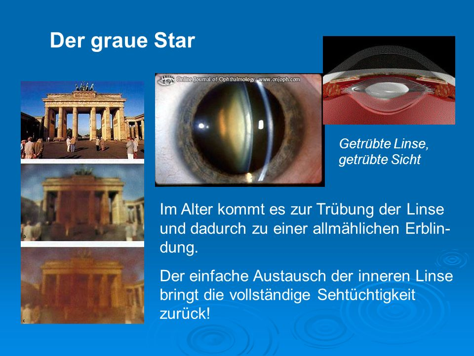 Der graue Star Getrübte Linse, getrübte Sicht. Im Alter kommt es zur Trübung der Linse und dadurch zu einer allmählichen Erblin-dung.