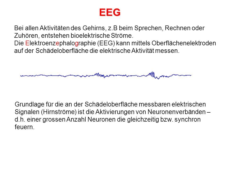 EEG Bei allen Aktivitäten des Gehirns, z.B beim Sprechen, Rechnen oder