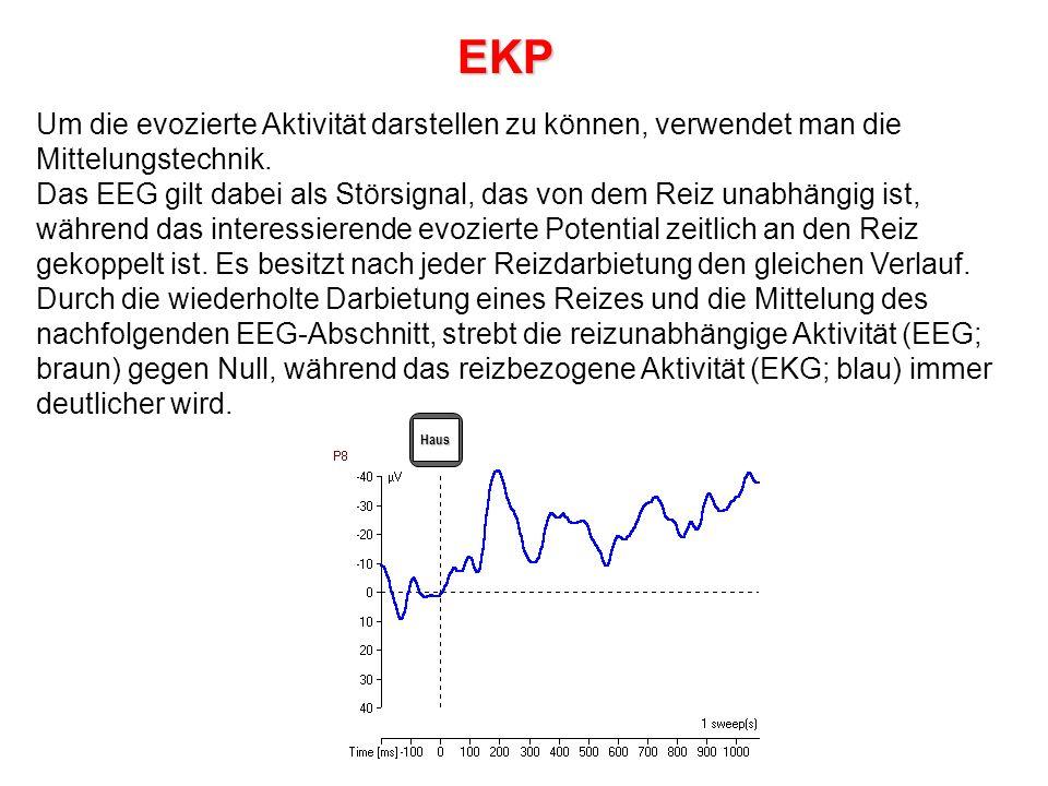 EKP Um die evozierte Aktivität darstellen zu können, verwendet man die Mittelungstechnik.