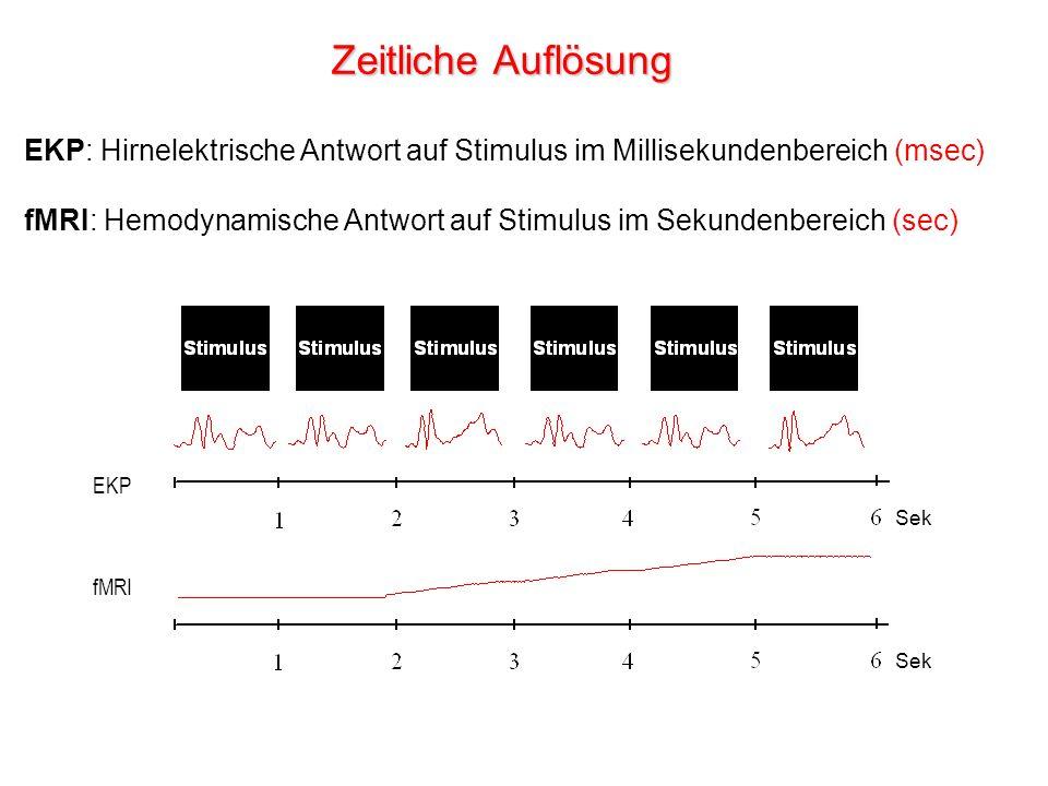 Zeitliche Auflösung EKP: Hirnelektrische Antwort auf Stimulus im Millisekundenbereich (msec)