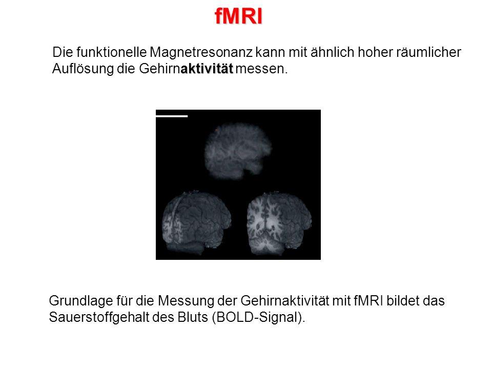 fMRI Die funktionelle Magnetresonanz kann mit ähnlich hoher räumlicher Auflösung die Gehirnaktivität messen.