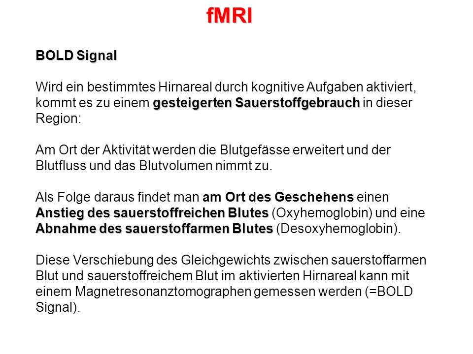 fMRI BOLD Signal.