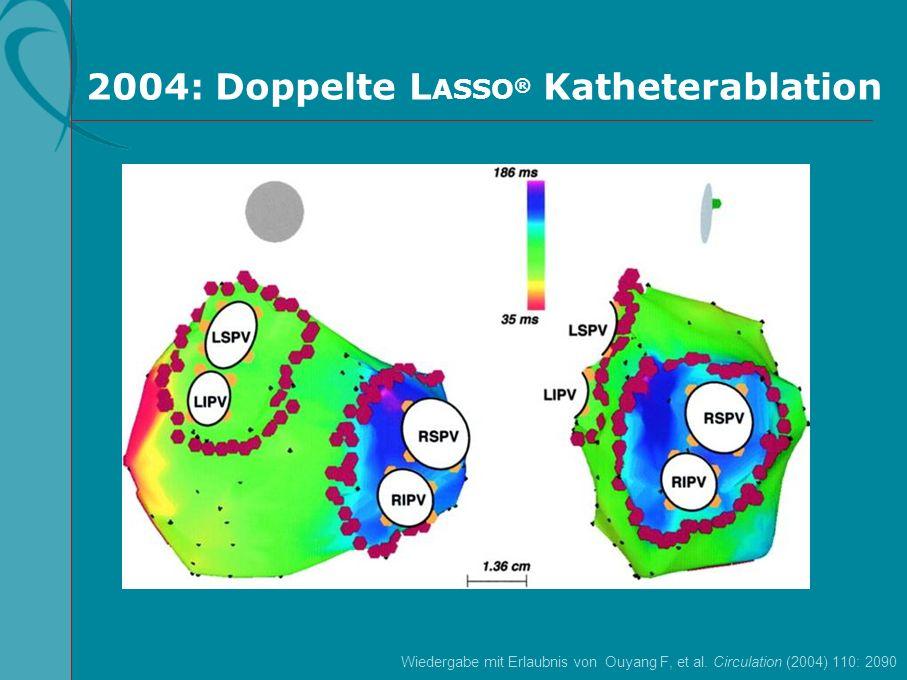 2004: Doppelte LASSO® Katheterablation