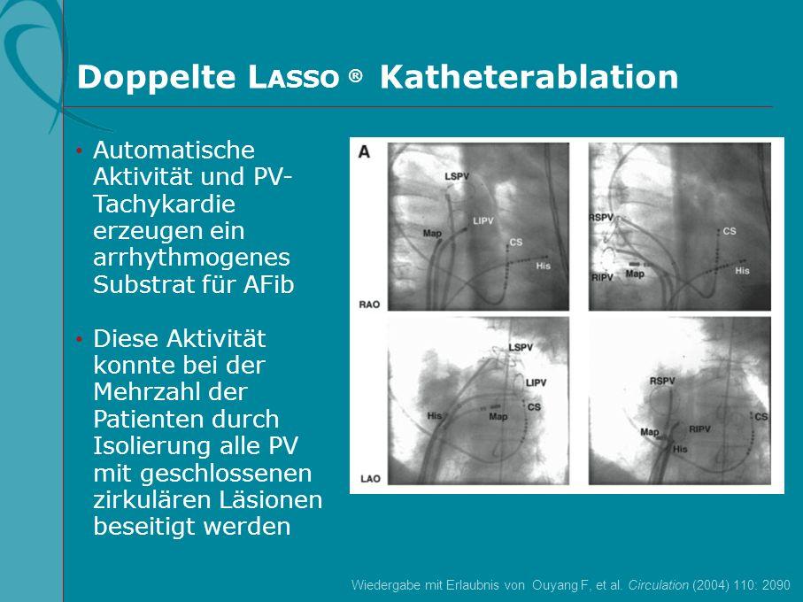 Doppelte LASSO ® Katheterablation