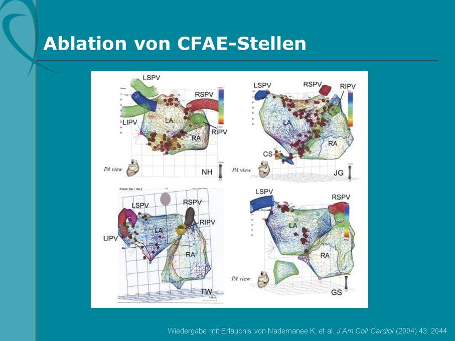 Ablation von CFAE-Stellen
