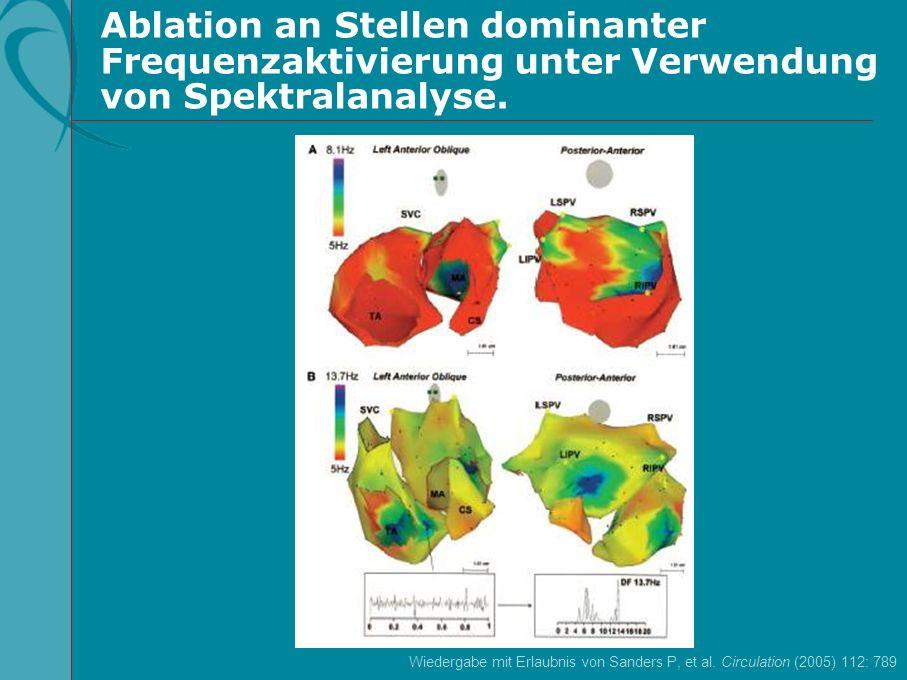 Ablation an Stellen dominanter Frequenzaktivierung unter Verwendung von Spektralanalyse.