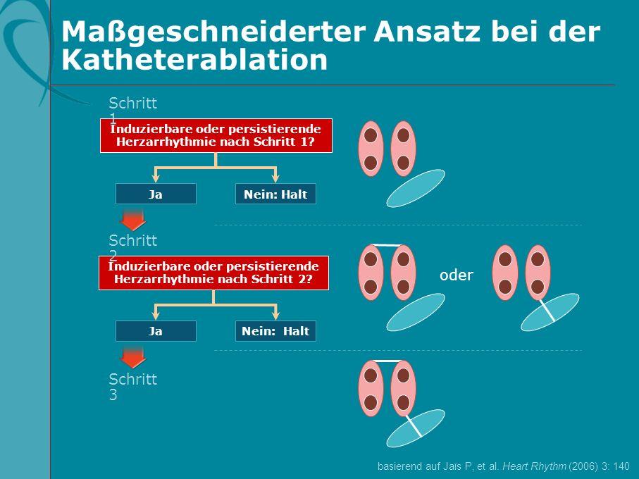 Maßgeschneiderter Ansatz bei der Katheterablation