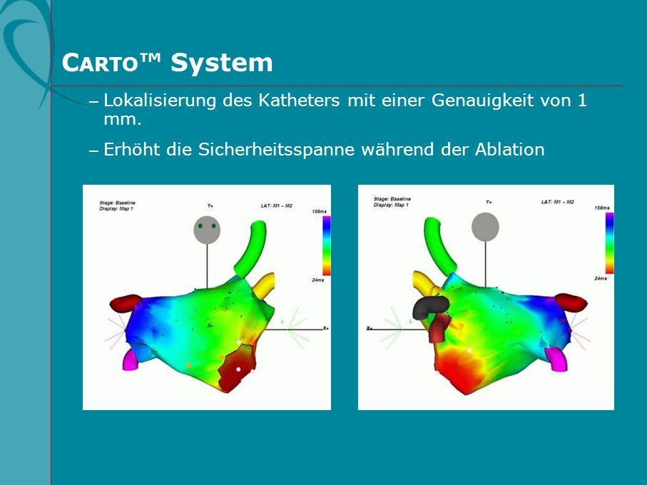 CARTO™ System Lokalisierung des Katheters mit einer Genauigkeit von 1 mm. Erhöht die Sicherheitsspanne während der Ablation.