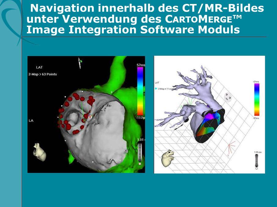Navigation innerhalb des CT/MR-Bildes unter Verwendung des CARTOMERGE™ Image Integration Software Moduls