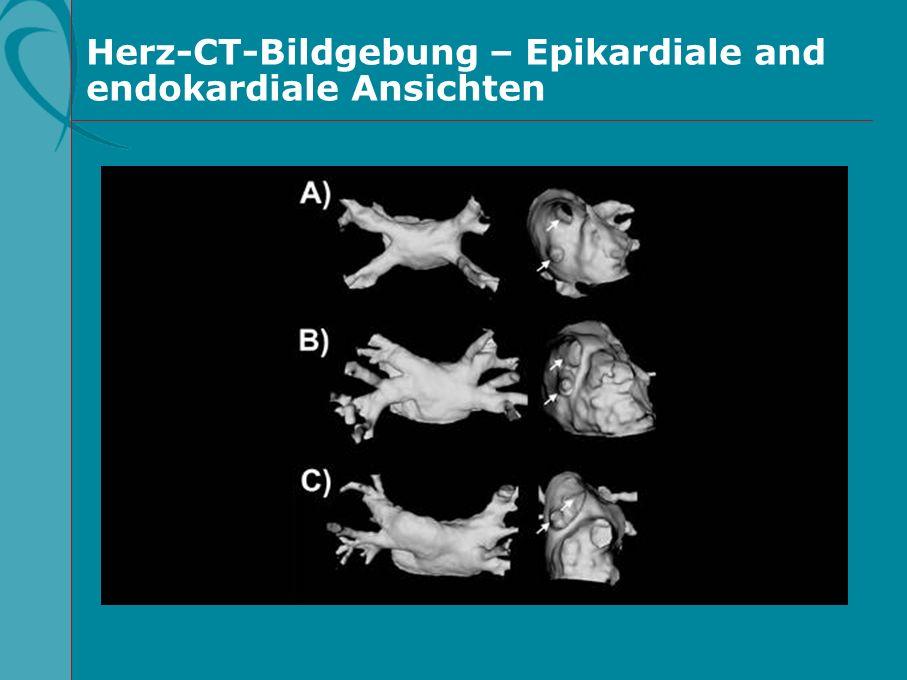 Herz-CT-Bildgebung – Epikardiale and endokardiale Ansichten