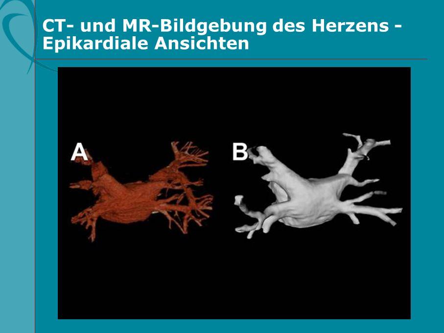 CT- und MR-Bildgebung des Herzens - Epikardiale Ansichten