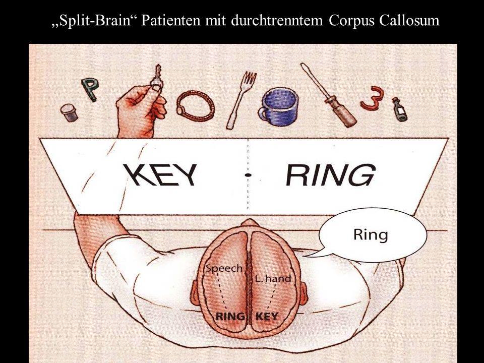 """""""Split-Brain Patienten mit durchtrenntem Corpus Callosum"""