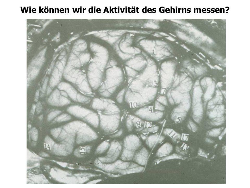 Wie können wir die Aktivität des Gehirns messen
