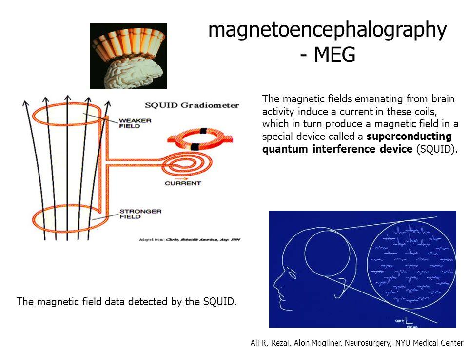 magnetoencephalography - MEG