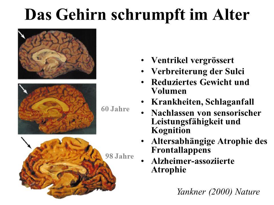 Das Gehirn schrumpft im Alter