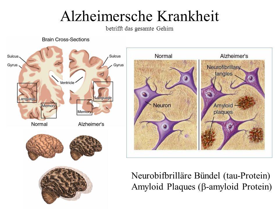 Alzheimersche Krankheit betrifft das gesamte Gehirn