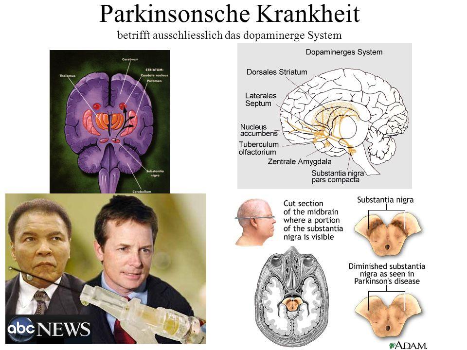 Parkinsonsche Krankheit betrifft ausschliesslich das dopaminerge System