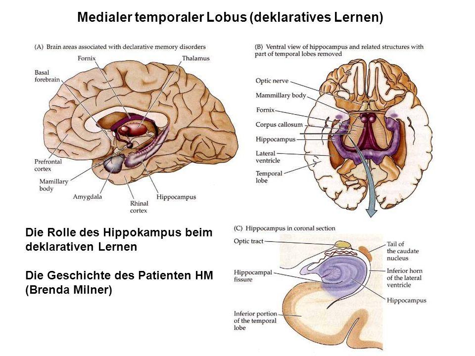 Medialer temporaler Lobus (deklaratives Lernen)