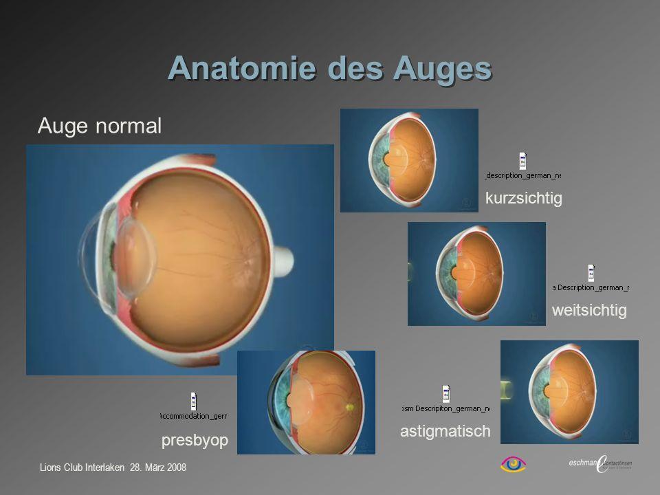 Anatomie des Auges Auge normal kurzsichtig weitsichtig astigmatisch