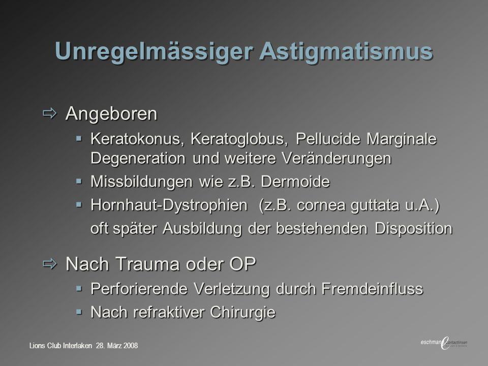 Unregelmässiger Astigmatismus