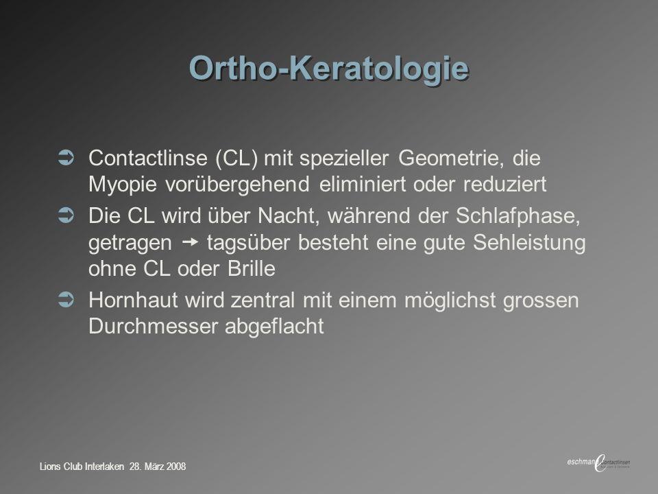 Ortho-Keratologie Contactlinse (CL) mit spezieller Geometrie, die Myopie vorübergehend eliminiert oder reduziert.