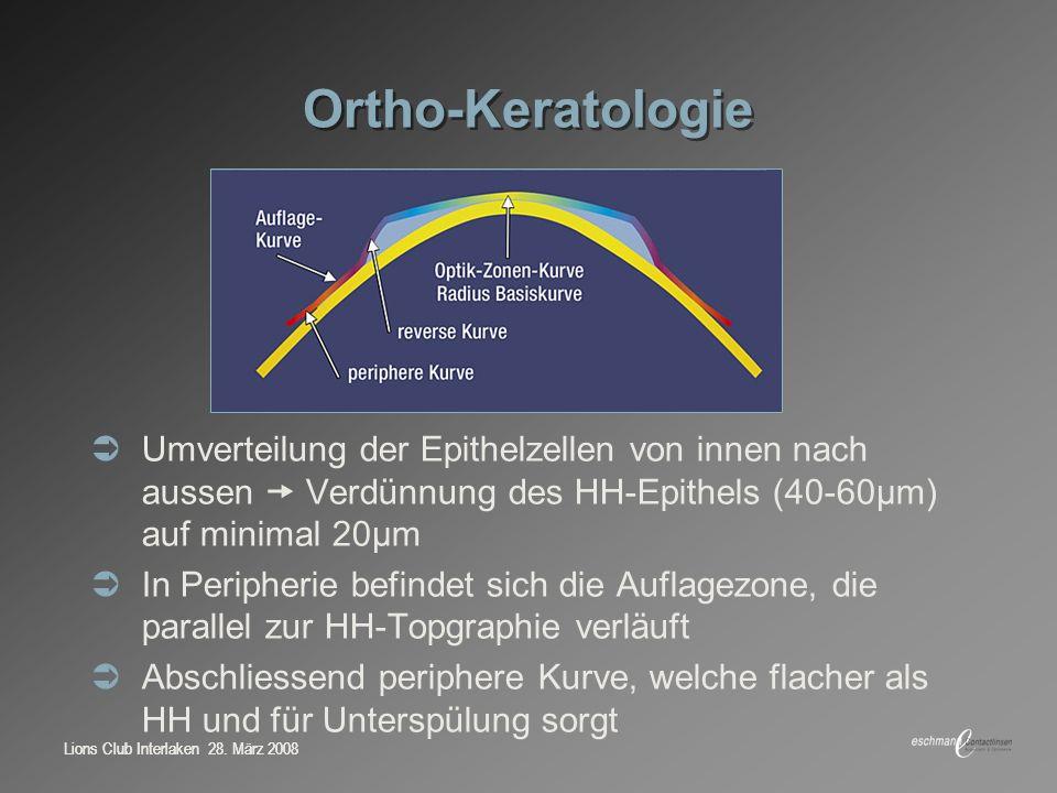 Ortho-Keratologie Umverteilung der Epithelzellen von innen nach aussen  Verdünnung des HH-Epithels (40-60μm) auf minimal 20μm.